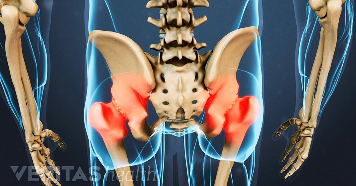 Hip Pain And Arthritis Arthritis Health