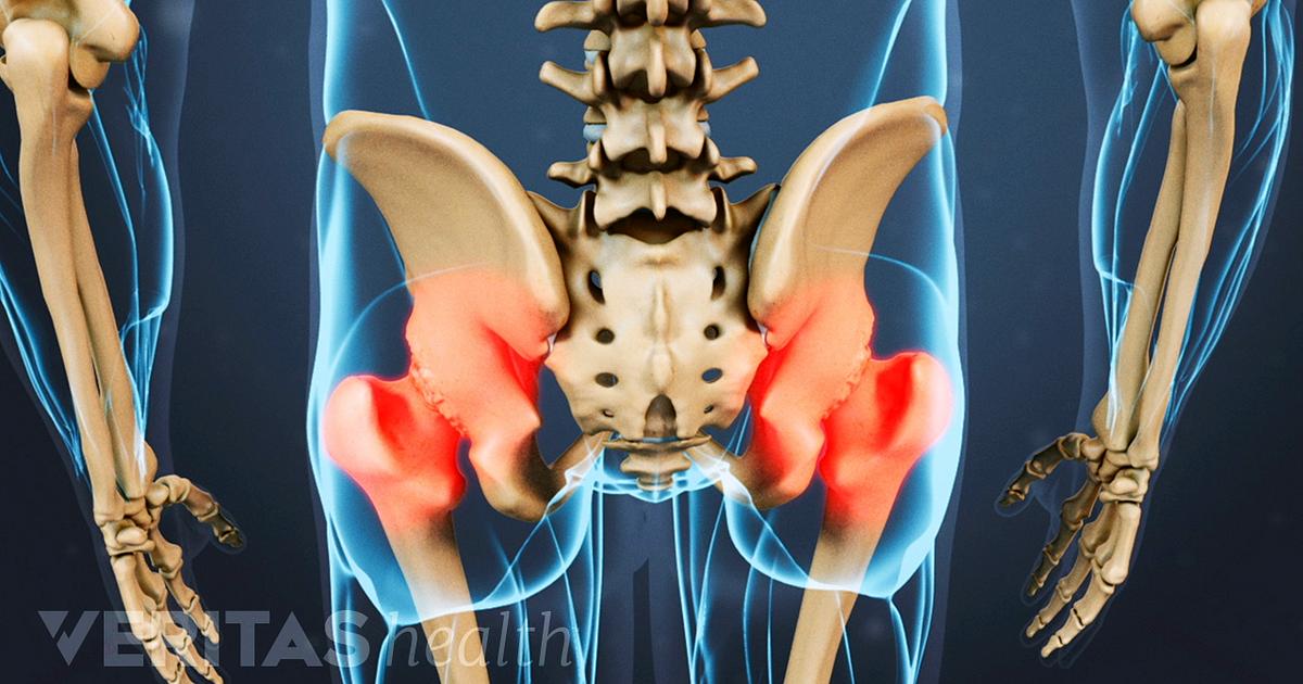 Steroid injection in hip aftercare actavis balkan pharma dupnitsa ad