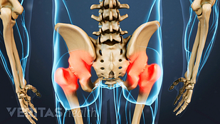 Image of the lumbar spin and hip joints the pain area of hip osteoarthritis highlighted.