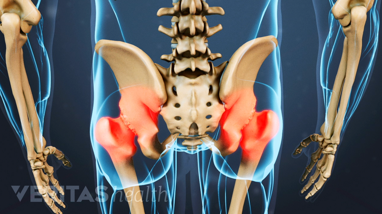 Posterior view of the pelvis showing pain in the hip joints