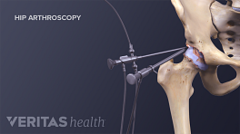 Illustration showing instrumentation for a hip replacement surgery