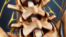 腰椎显微手术手术视频