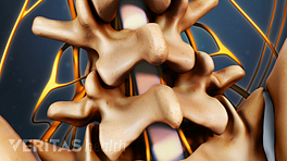 Posterior view of the lumbar spine showing ligamentum flavum.