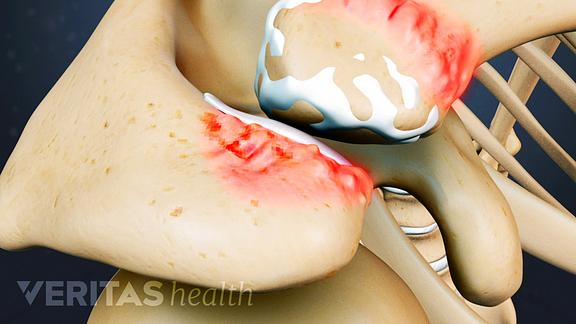 Medical illustration showing inflamed cartilage in the shoulder that has worn away