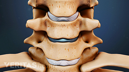 Anterior view of cervical spine showing disc replacement.