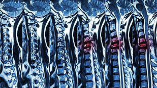 MRI scans of the spine.