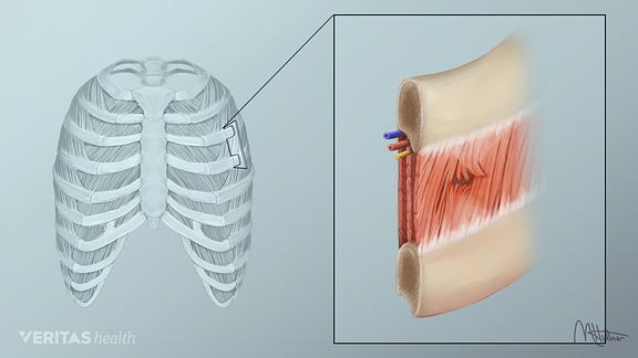 intercostal muscle tear