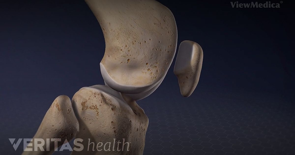 Knee Anatomy Video Arthritis Health