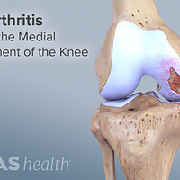 Osteoarthritis affecting the medial compartment of the knee.