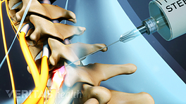Selective nerve root block being injected into the cervical spine