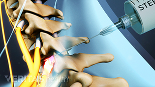 Animated video still of selective nerve root block in the cervical spine