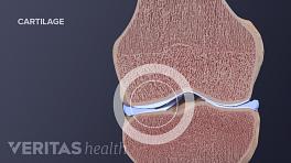 Skeletal view of normal knee cartilage