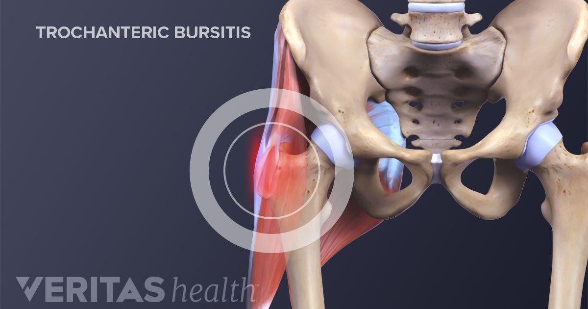 Hip Bursitis Treatment | Arthritis-Health