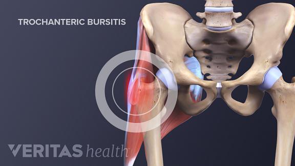 Trochanteric bursitis and iliopsoas bursitis are the two most common types of hip bursitis.