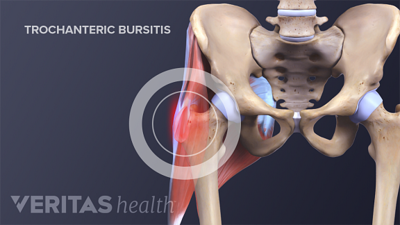 Hip bursitis is commonly referred to as trochanteric bursitis and greater trochanter pain syndrome