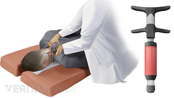 Medical illustration of doctor performing activator method on patient