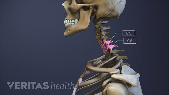 Illustration of the cervical spine, with the C5, C6 vertebrae highlighted and labeled.