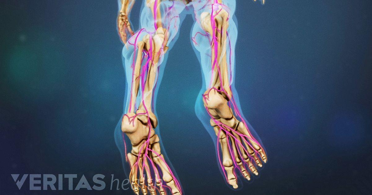 La causas agrandadas pierna de