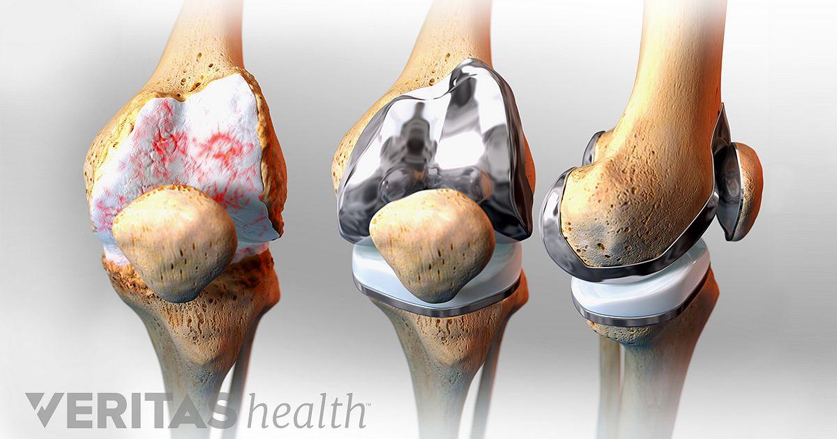 Total Knee Replacement for Knee Arthritis | Arthritis-Health