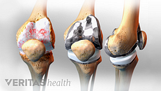 When to Consider Knee Replacement Surgery