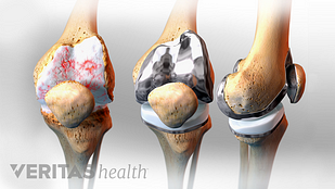 Medical illustration of an arthritic knee joints a front and side view of a replaced knee joint and a re