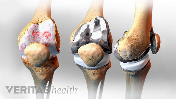 3 stages of a knee replacement. First inset shows a knee with degenerated cartilage, the second inset shows a replaced knee joint, the 3rd inset shows the replaced knee from the side