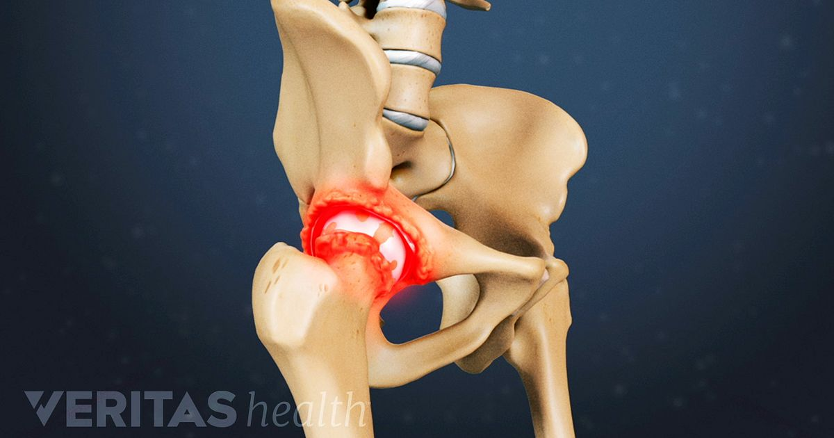 Clinical Symptoms Of Bone Spurs