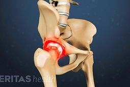 Hip Bone Spurs