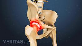 Medical illustration of hip inflammation