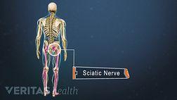 Heat therapy for sciatica