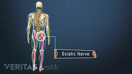 Posterior view of the entire body labeling the sciatic nerve in the right buttock.