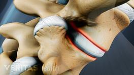 The formation of extra bone on the vertebra.