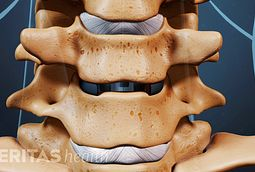 Inserting a cage during an ACDF helps prevent the vertebrae from collapsing and allows the bone graft to bridge the adjacent vertebrae.