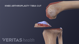 Medical illustration of tibia cuts during total knee replacement