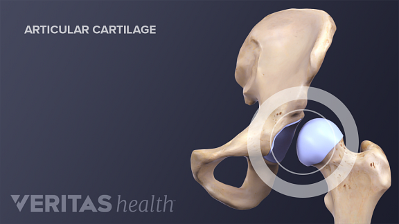 Illustration of hip articular cartilage