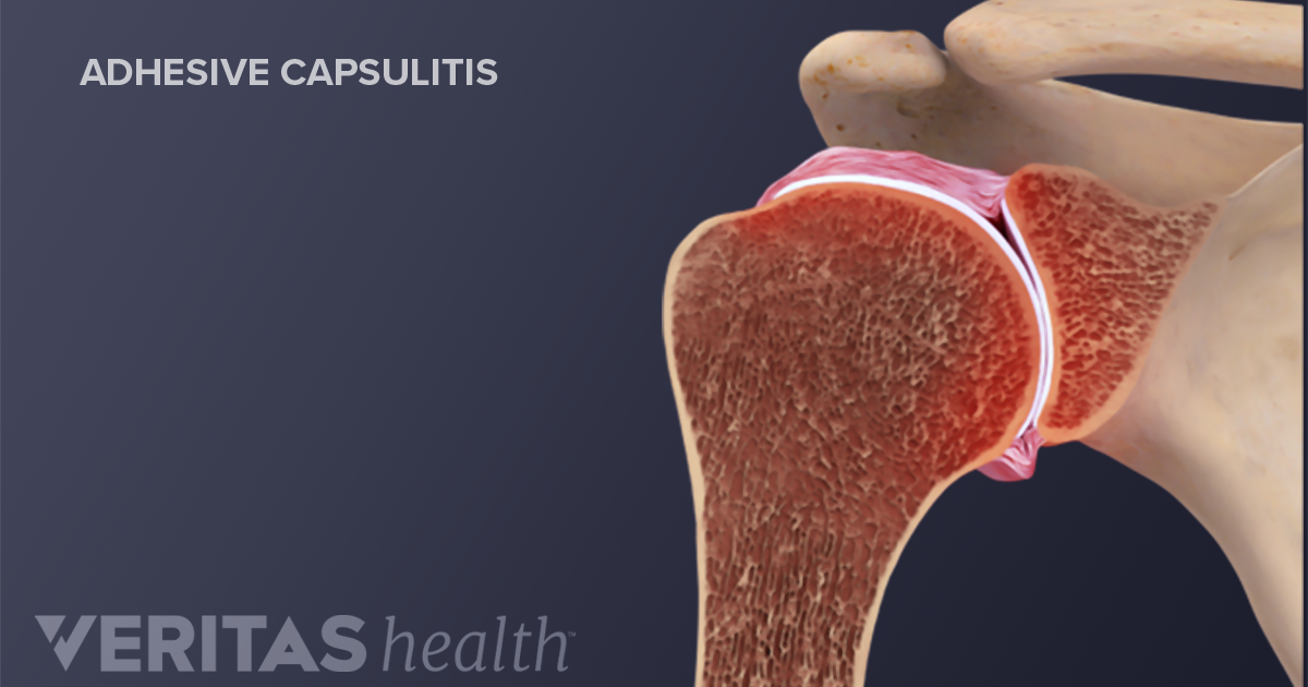 Most frozen shoulder treatment involves controlling shoulder pain and preserving as much range of motion in the shoulder as possible Medications Overthecounter pain relievers such as aspirin and ibuprofen Advil Motrin IB others can help reduce pain and inflammation associated with frozen shoulder