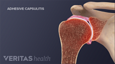 Frozen Shoulder Symptoms