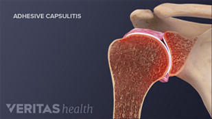 Cross section of normal joint compared to one with frozen shoulder (adhesive capsulitis).