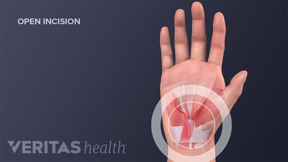The open release incision site from carpal tunnel surgery.