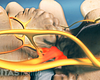 Location of facet joint injections.