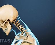 Neck Exercises for Neck Pain