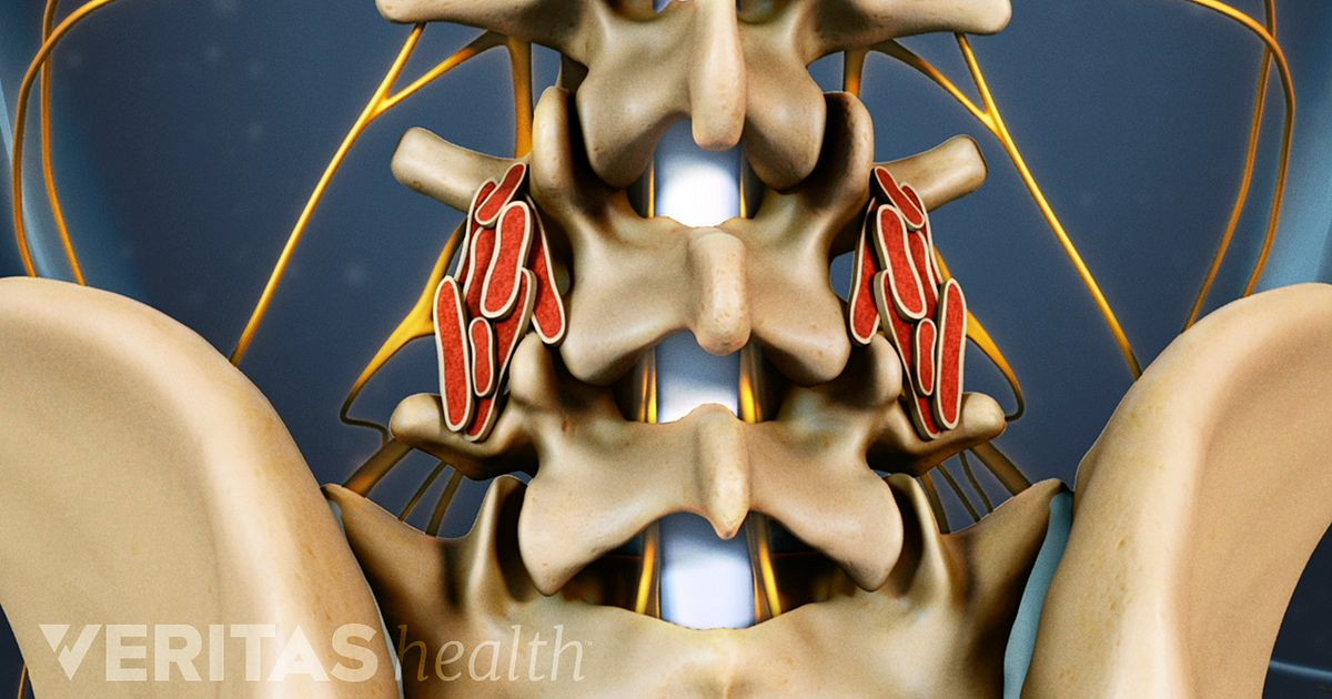 Failed Spinal Fusion Surgery