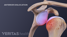 Profile view of an anterior shoulder dislocation