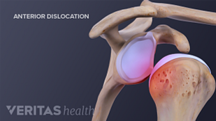 Medical illustration of an anterior shoulder dislocation