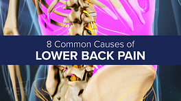 Animated still highlighting the location of the lower back muscles with the title 8 common causes of back pain overlaid