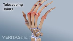 Blood Tests Rheumatoid Arthritis Diagnosis