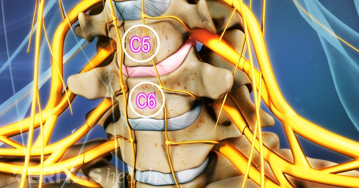 Perioada pstoperatorie hernie cervicala c5 c6