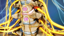 Medical illustration showing the C5-C6 vertebral segment