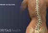 Posterior view of scoliosis in the spine