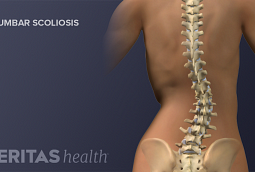 Lumbar Scoliosis of the Adult Spine